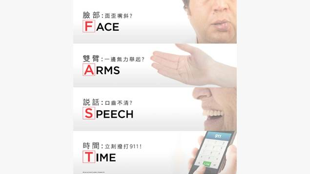 Face, Arms, Speech, Time