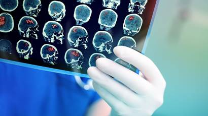 Closeup of doctors hand holding CT brainscan