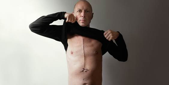 Maciej Toporowicz shows his scar from open heart surgery.