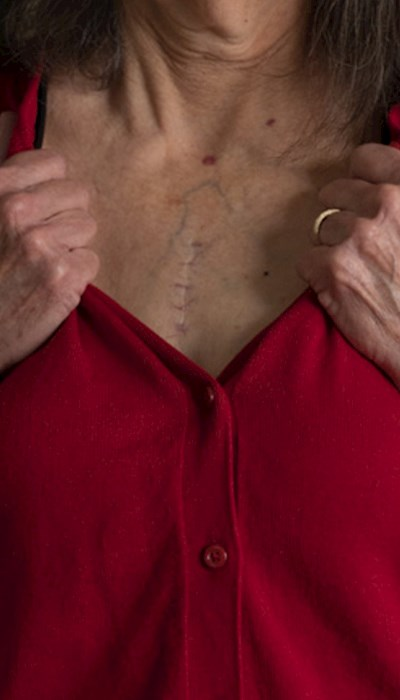 Close up of heart transplant surgery scar
