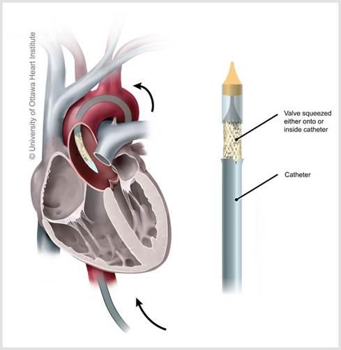 TAVI - Catheter valve in heart
