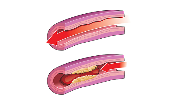 <p>Normal blood flow through healthy artery (top) and blocked blood flow in artery with yellow plaque and red blood clot (bottom).</p>